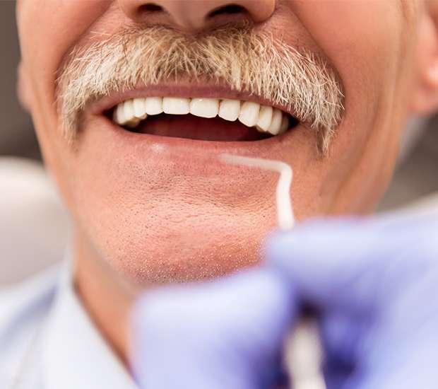 Herndon Adjusting to New Dentures
