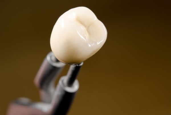 What You Should Know About Different Dental Crown Materials