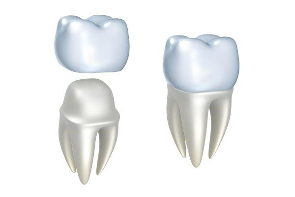Dental Implants Herndon, VA