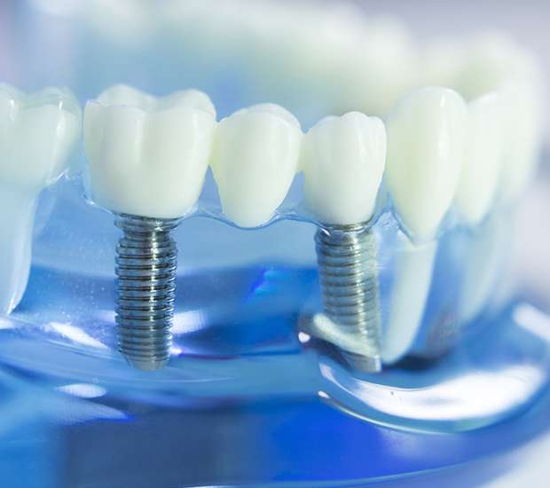 Herndon Dental Implants