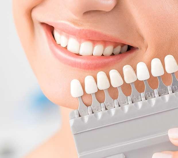 Herndon Dental Veneers and Dental Laminates