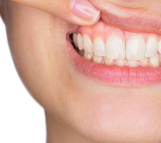 Herndon Gum Disease
