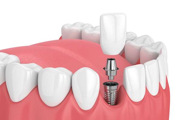 How Painful Is Dental Implant Surgery