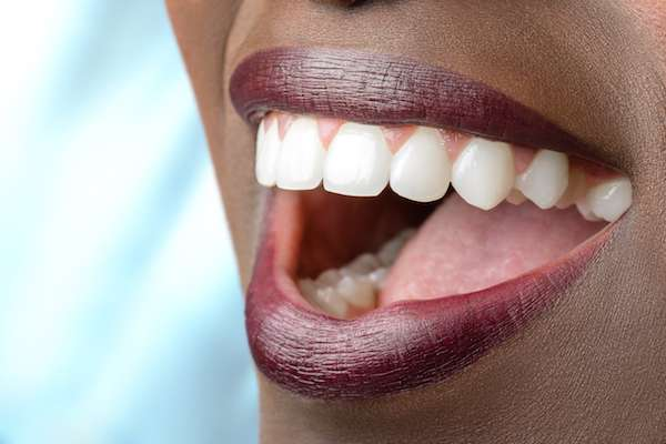 Routine Dental Care: What Are Tooth Colored Fillings